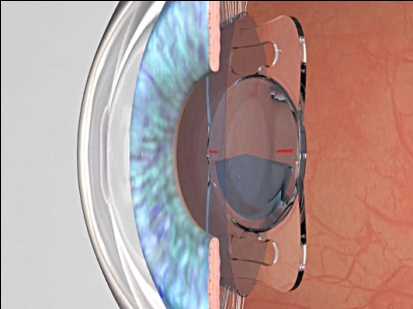Trifocal Intra-ocular Implant