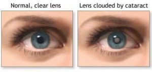 Cataract Removal Comparison