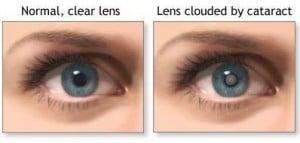 Cataract Removal Comparison